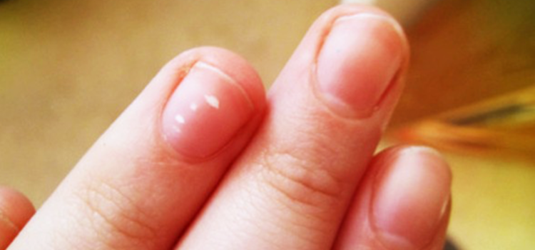 What are these white spots on your nails?