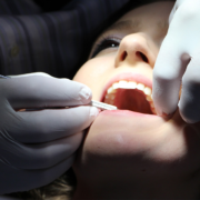 6 simple steps to help prevent tooth cavities