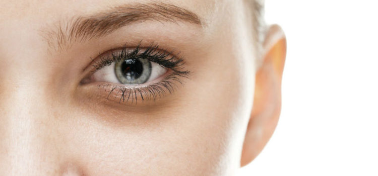 How to deal with under eye bags and dark circles