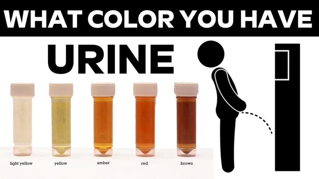 Urine colors