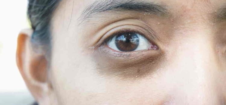 5 remedies for eyebags and dark circles