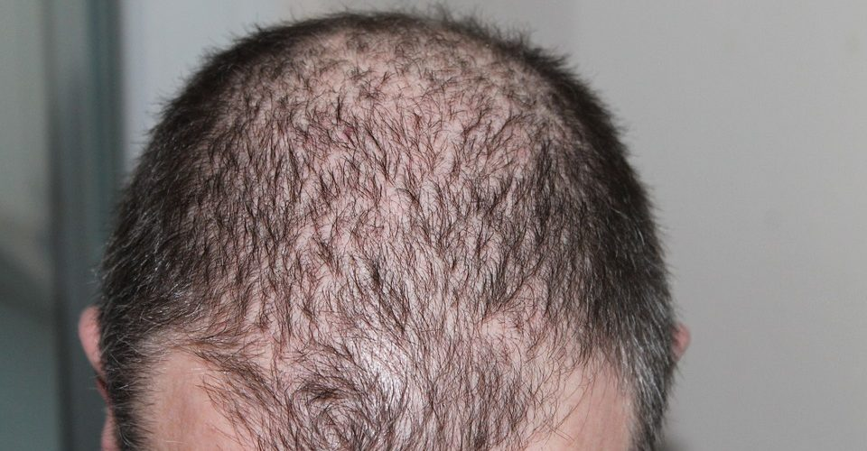 Best hair transplant in the Philippines
