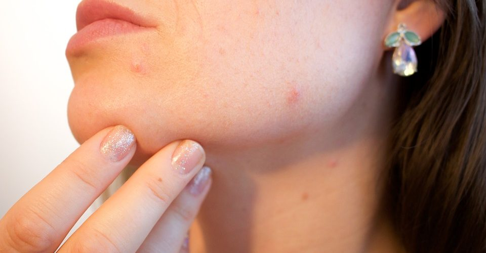 Adult acne, what we all need to know?